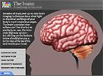 The Brain - An Awesome Creation